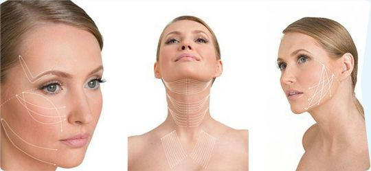 Lifting facial f�r� interven�ie chirurgical�